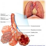 Near-Fatal Asthma